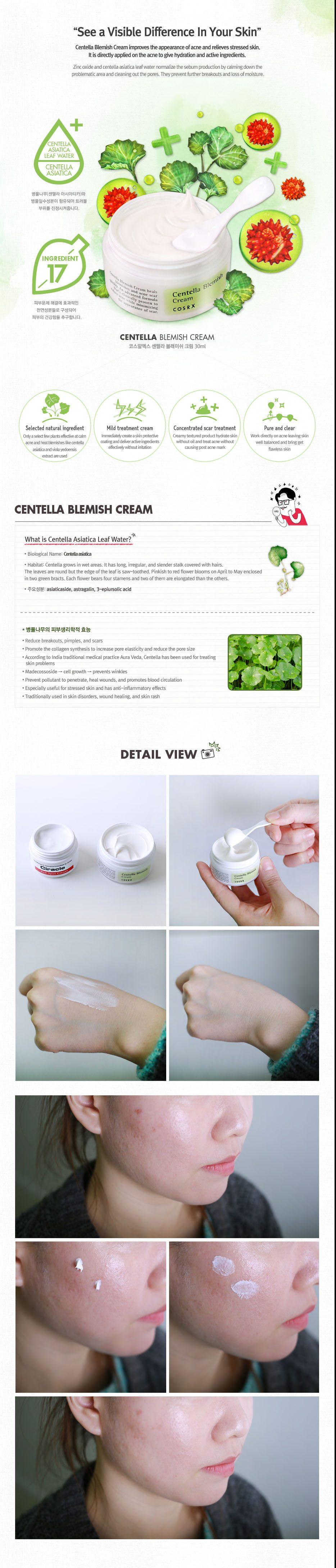Back to: Skincare [COSRX] Centella Blemish Cream - 30ml from Shopandshop india