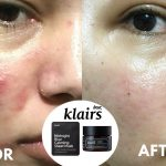 KLAIRS-Midnight-Blue-Calming-Cream-shopandshop-before-after