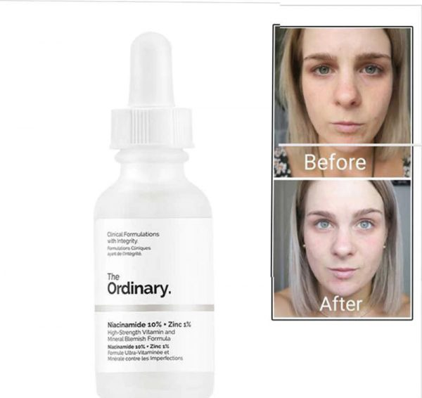 The Ordinary Niacinamide 10 Zinc 1 30ml Shop And Shop Korean Cosmetics Beauty Skincare And Makeup Products Shop India